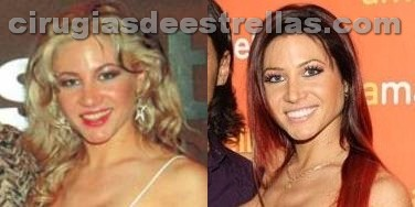 adabel guerrero antes y despues