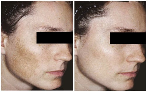 What is the best treatment for melasma?