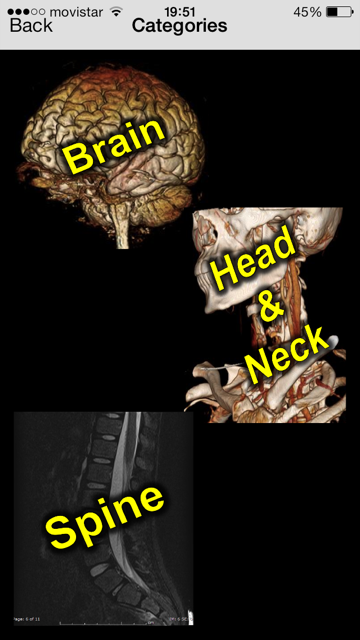 Neuroradiology Cases 2