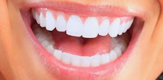 5 Buah untuk Gigi Putih Berkilau Yang Wajib Anda Coba