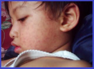 Gejala Penyakit Campak, Bahaya dan Komplikasi Campak