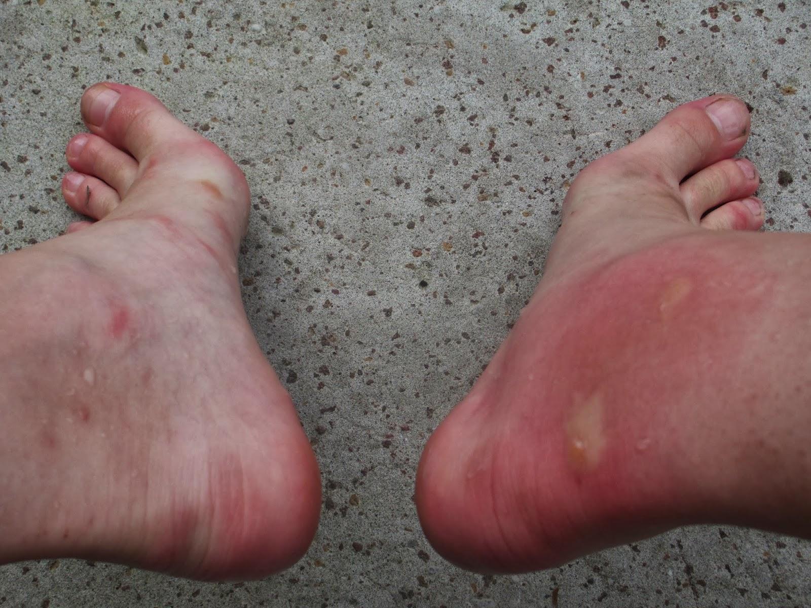 allergische reactie mug