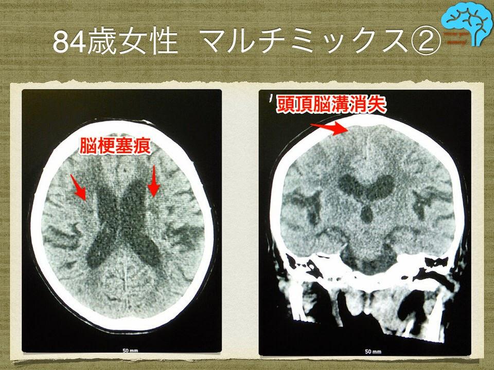 脳梗塞痕と正常圧水頭症のCT所見