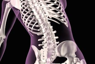 Osteoporose em crianças?