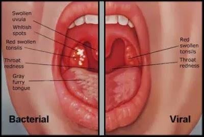 radang tenggorokan bakteri virus