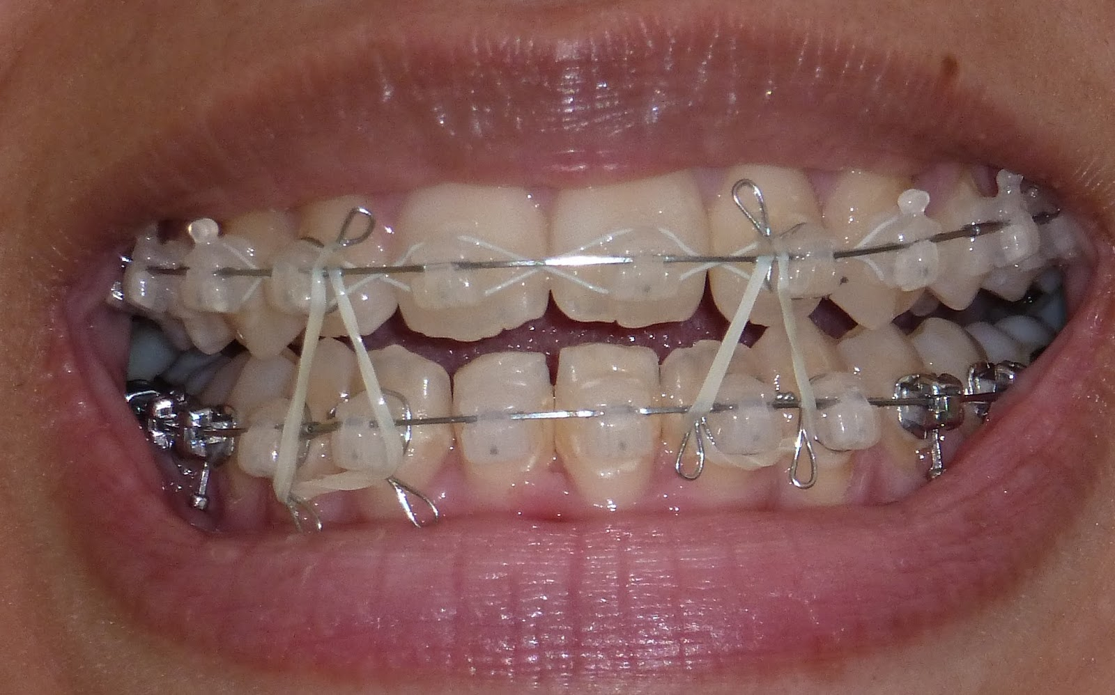 Cost Difference Between Ceramic Braces And Invisalign 25