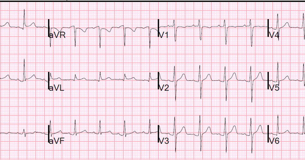 Severe Atypical Chest Pain in a Young Woman: Series of Pericarditis ECGs