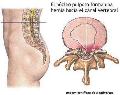 El dolor en la ingle a la izquierda a los hombres da en los riñones