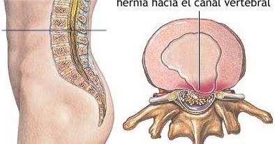 Los dolores en la espalda ante mensual las causas
