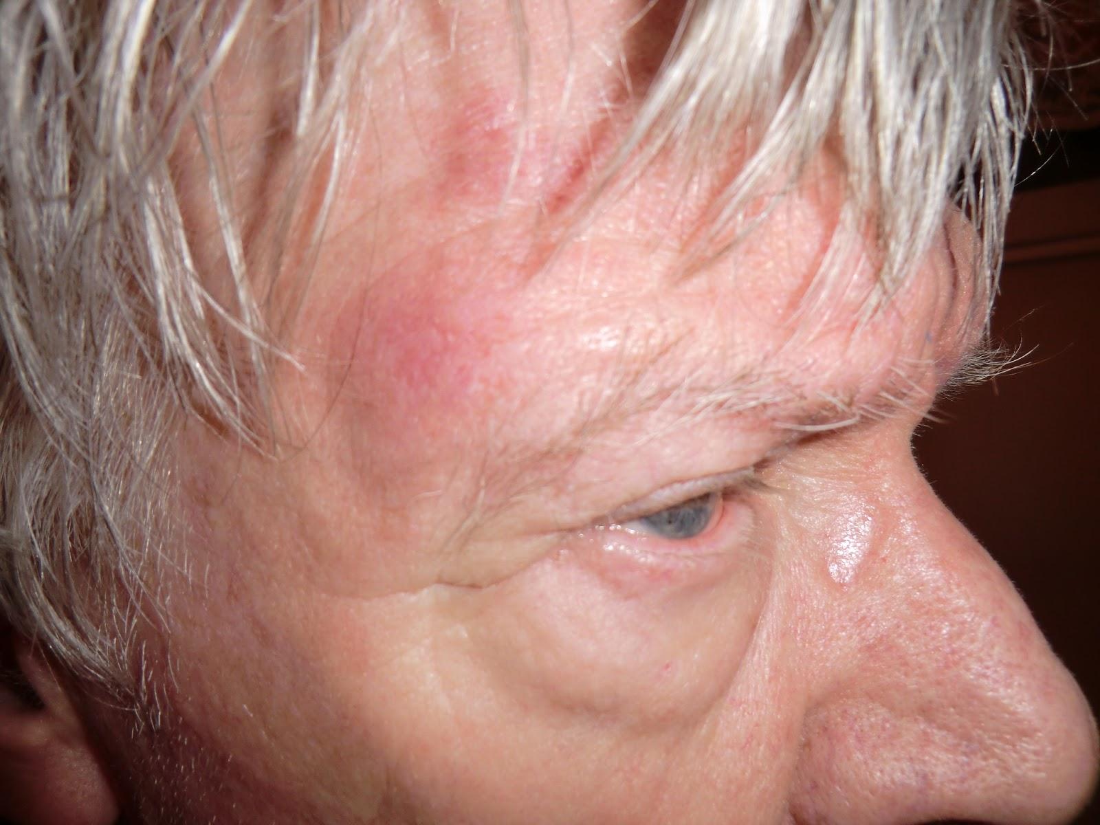 bältros ögon symtom