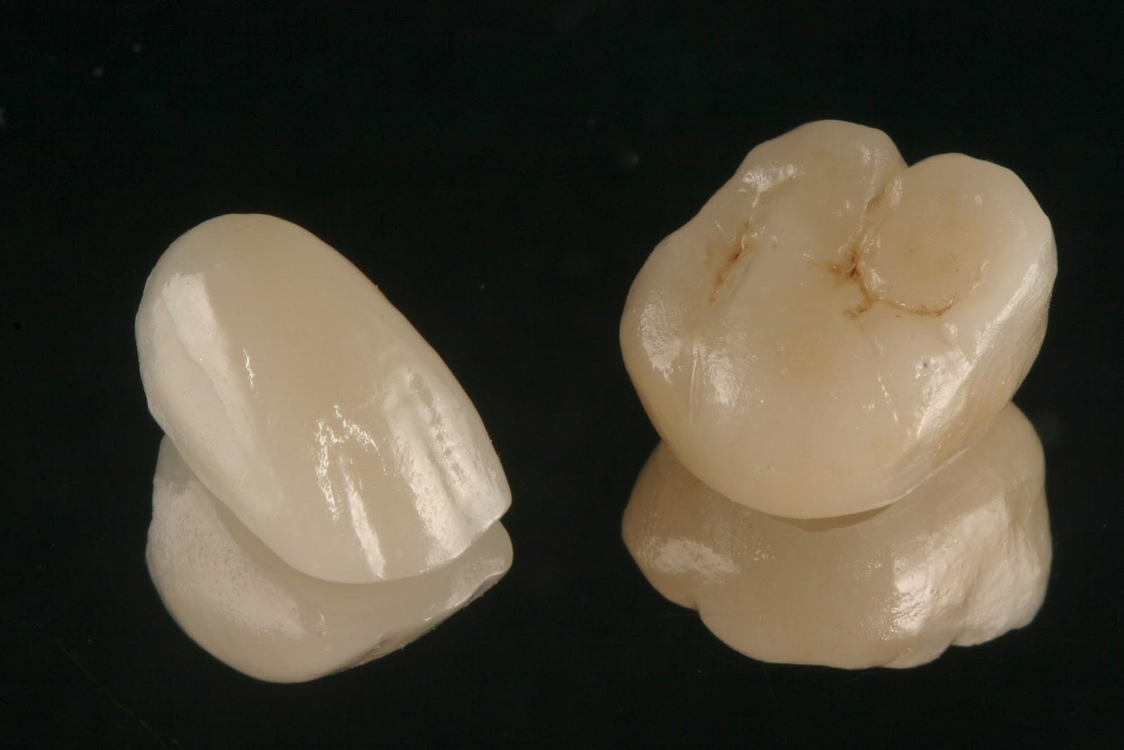 Blog odontolog a sin chorradas for Que es ceramica