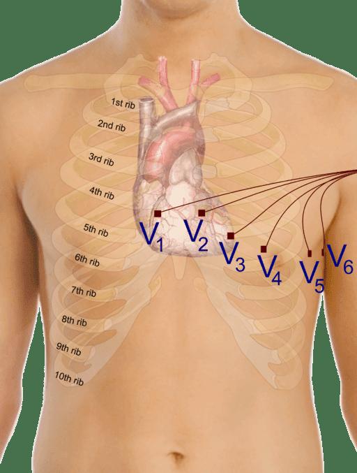 electrocardiograma. derivaciones precordiales