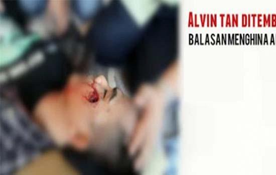 Alvin Tan Mati?