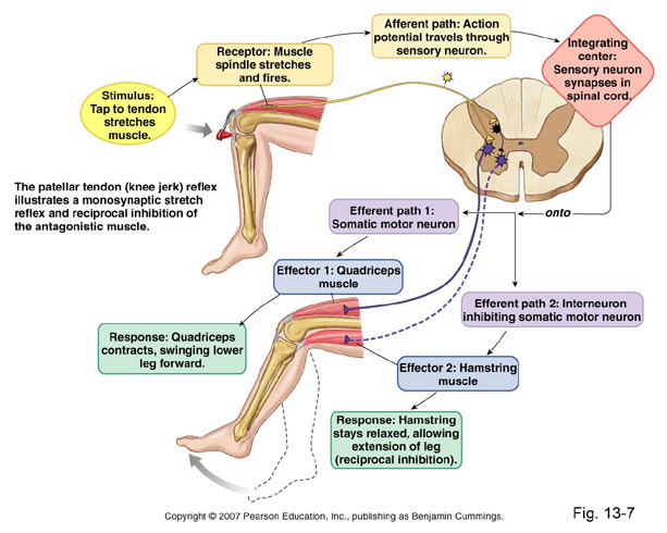 Understanding Williams Syndrome Muscles and Joints