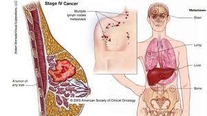 Tentang Kanker Payudara dan Cara Pencegahannya