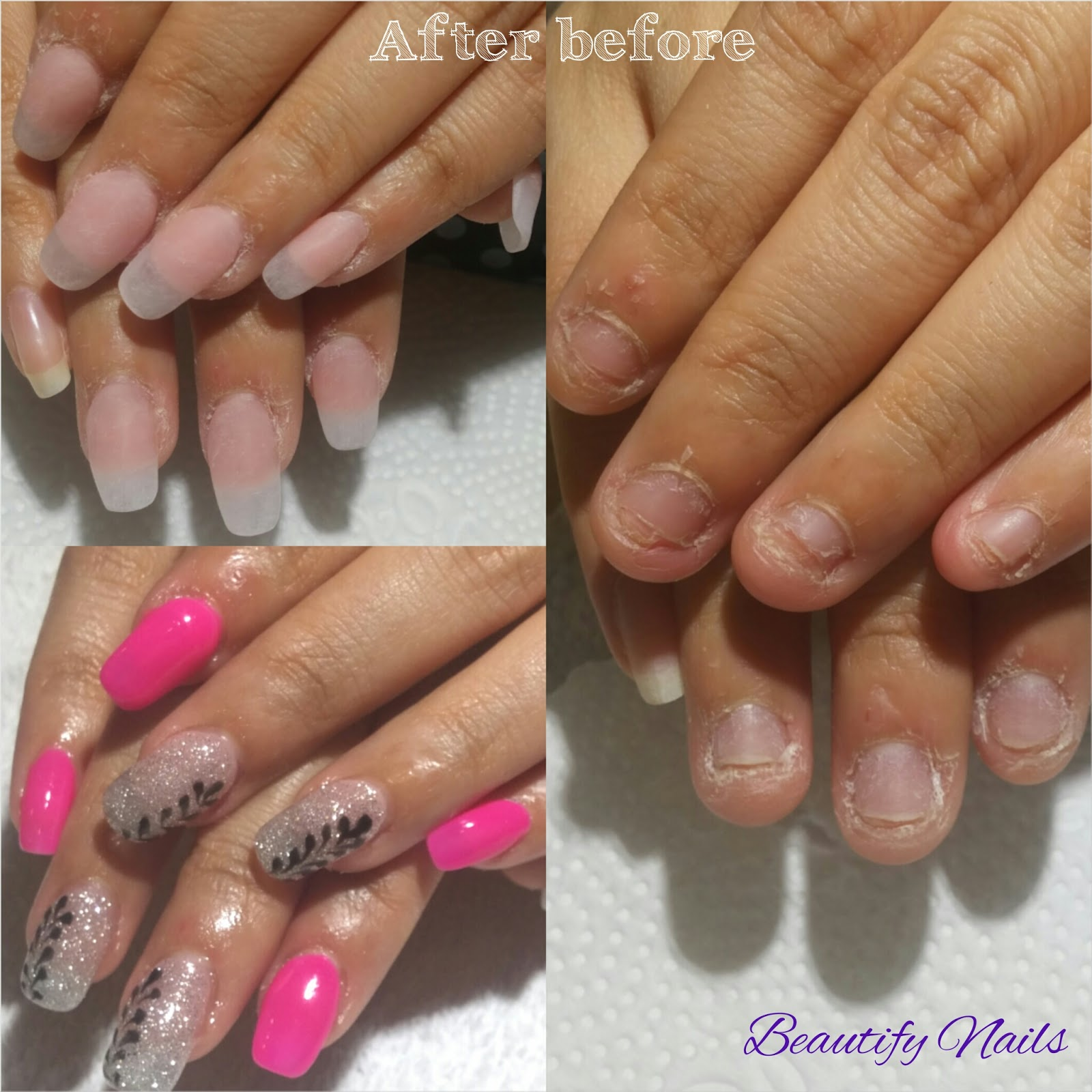 Beautify Nails By Venessa Concern About Your Nail Biting Habits Or Plucking Prinsesfo Choice Image