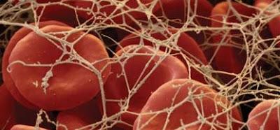 """<img src=""""fibrina.jpg"""" alt=""""la fibrina es una proteína que ayuda en la coagulación sanguínea"""">"""