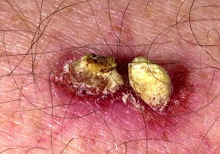 squamous cell skin cancer photos