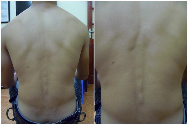 Đau nhói vùng thắt lưng mắc bệnh gì?