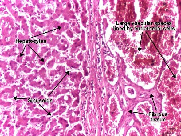 gallbladder disease complications