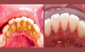 Tag Agua Oxigenada Bom Para Clarear Os Dentes