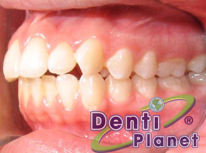 Blog ortodoncia dentiplanet inici el tratamiento y ahora for W de porter ortodoncia