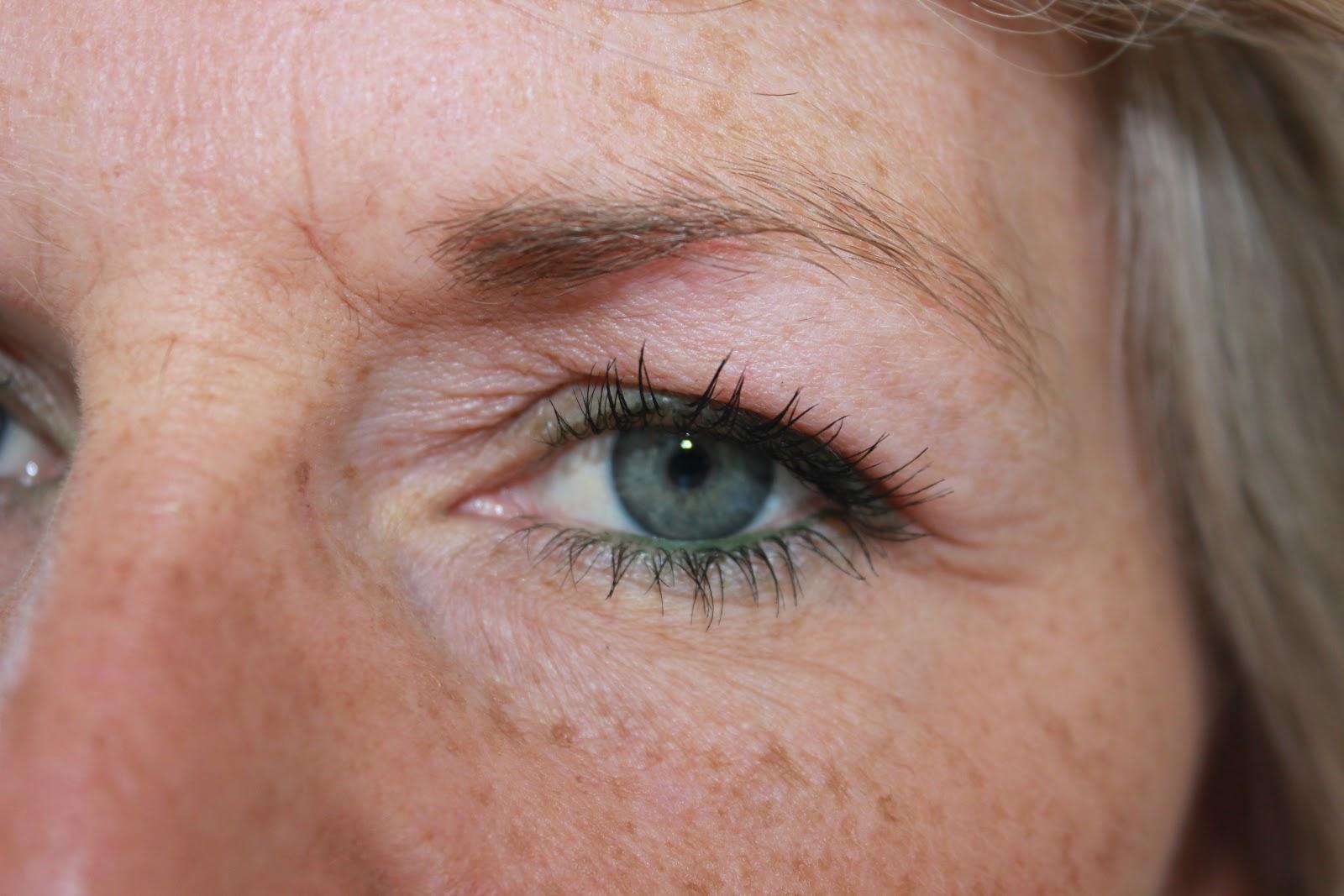 tunga ögonlock symptom