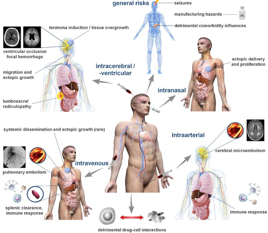 幹細胞治療の危険性