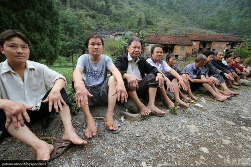 Aneh Penyakit Kulit Misteri Melanda Satu Kampung di China