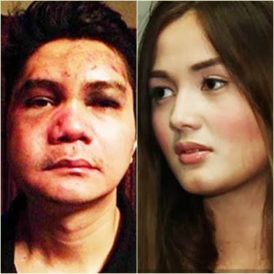 NBI: Vhong Navarro didn't rape Deniece Cornejo based on CCTV