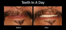 teeth in a day austin dental implant center