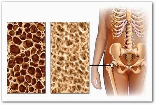 видео урок Упражнения при остеопорозе