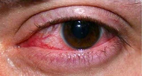 Cara Mengobati Sakit Mata tanpa Bahan Kimia
