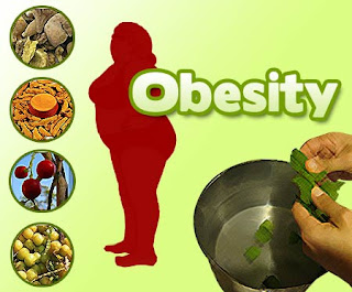 Faktor Penyebab Obesitas atau Kegemukan