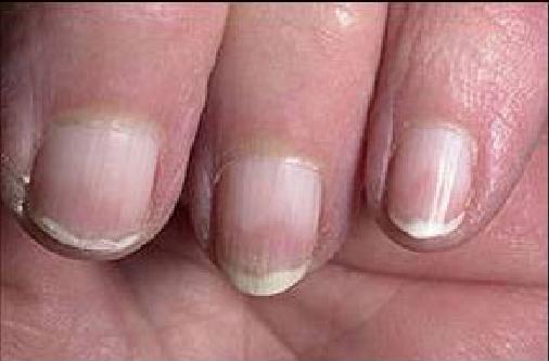 El tratamiento por el aceite de pino albar del hongo de los pie
