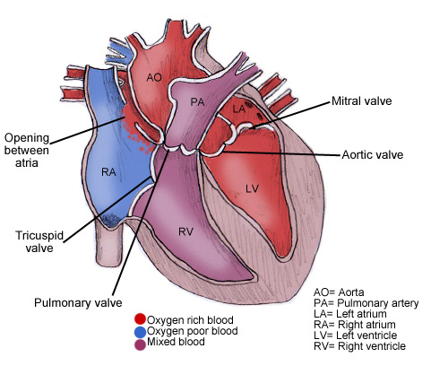 Cardiovascular system anatomy blogger uni doctors natural variants ccuart Gallery