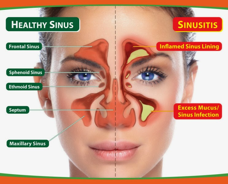 sinusitis specialty hospital in velachery, chennai, tamil nadu, sinas hospital