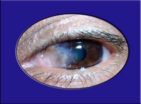 Carnosidad de los ojos (Pterigión)