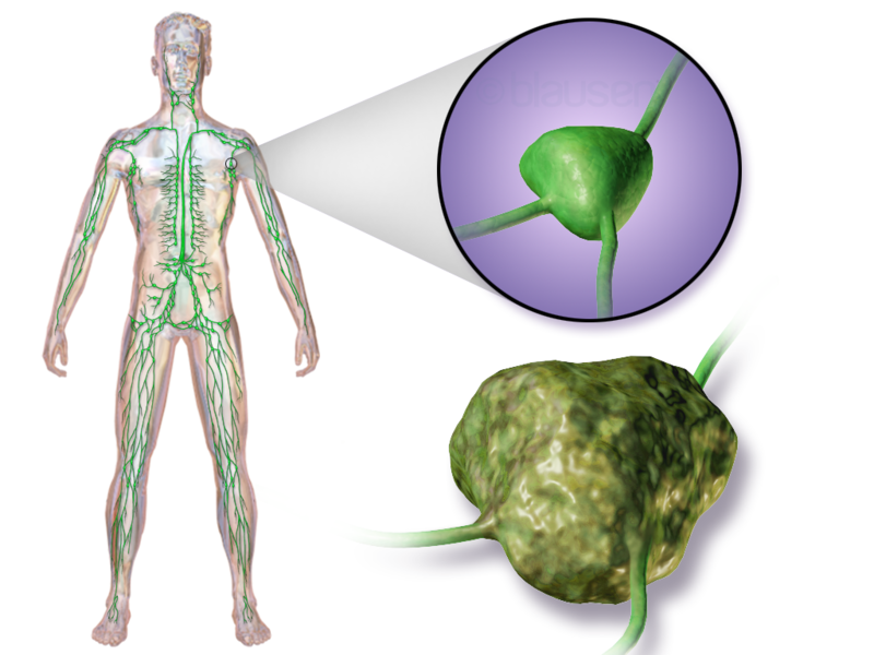 ciri ciri kanker getah bening, pembahasan lengkap mengenaikanker getah bening,