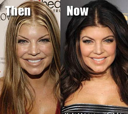 plastic surgery addiction Plastic surgery addictions allison d'alusio definition their ambition to look beautiful can turn into a dangerous obsession cosmetic surgery addicts are.