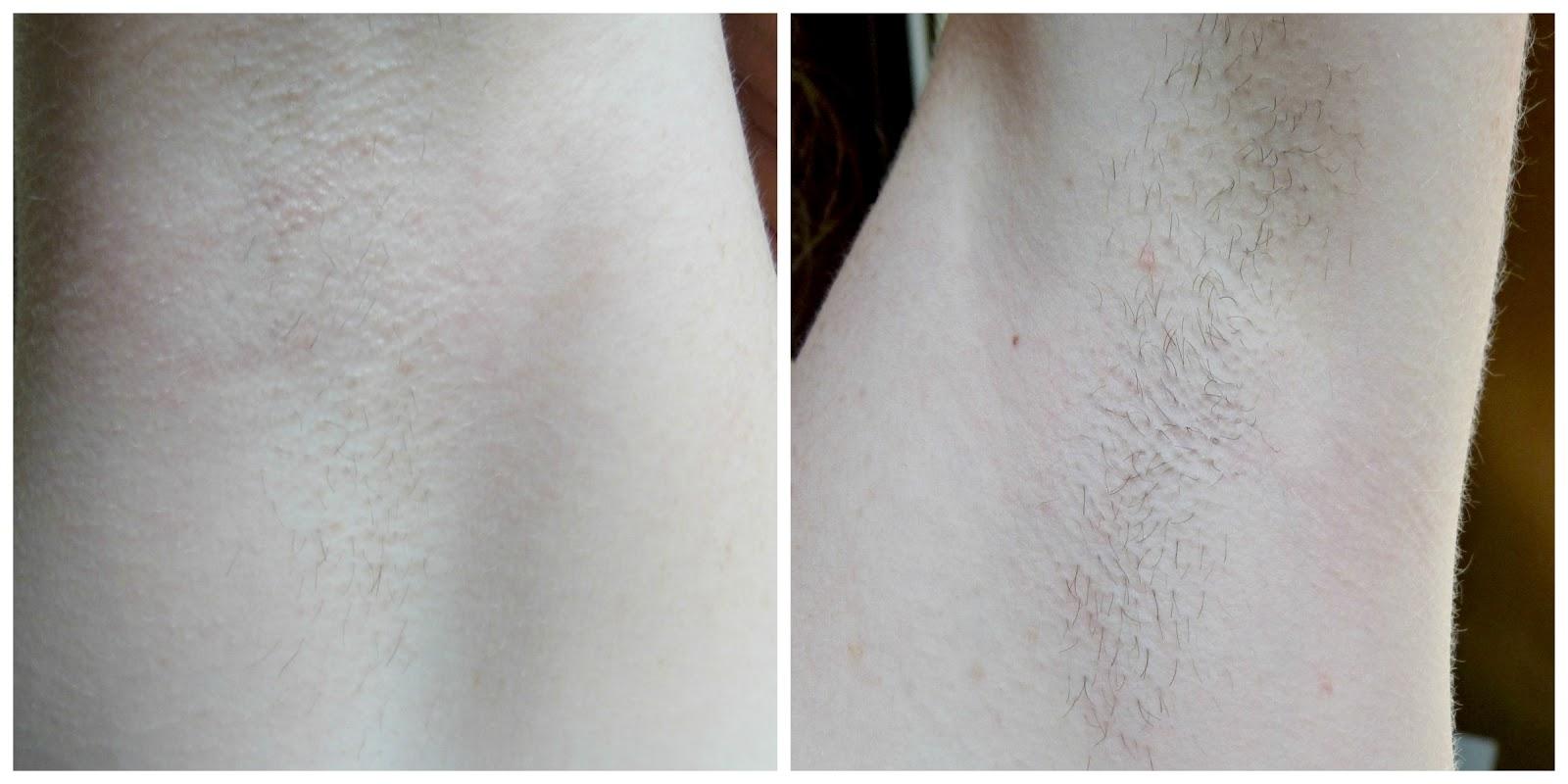 différence entre le rasoir et l'épilateur