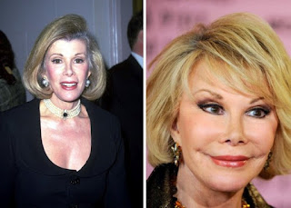 Kegagalan Operasi Plastik Joan Rivers