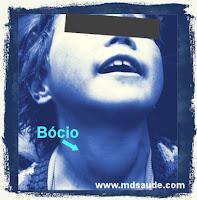 Sintoma do hipotireoidismo - Bócio