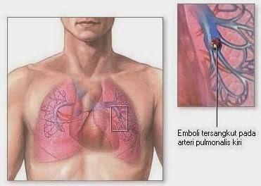 Pulmonary embolism - Healthy Fruits