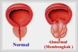 Cara Menyembuhkan Pembesaran Prostat