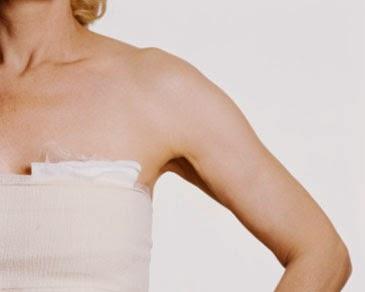 Cara efektif mengobati kanker payudara