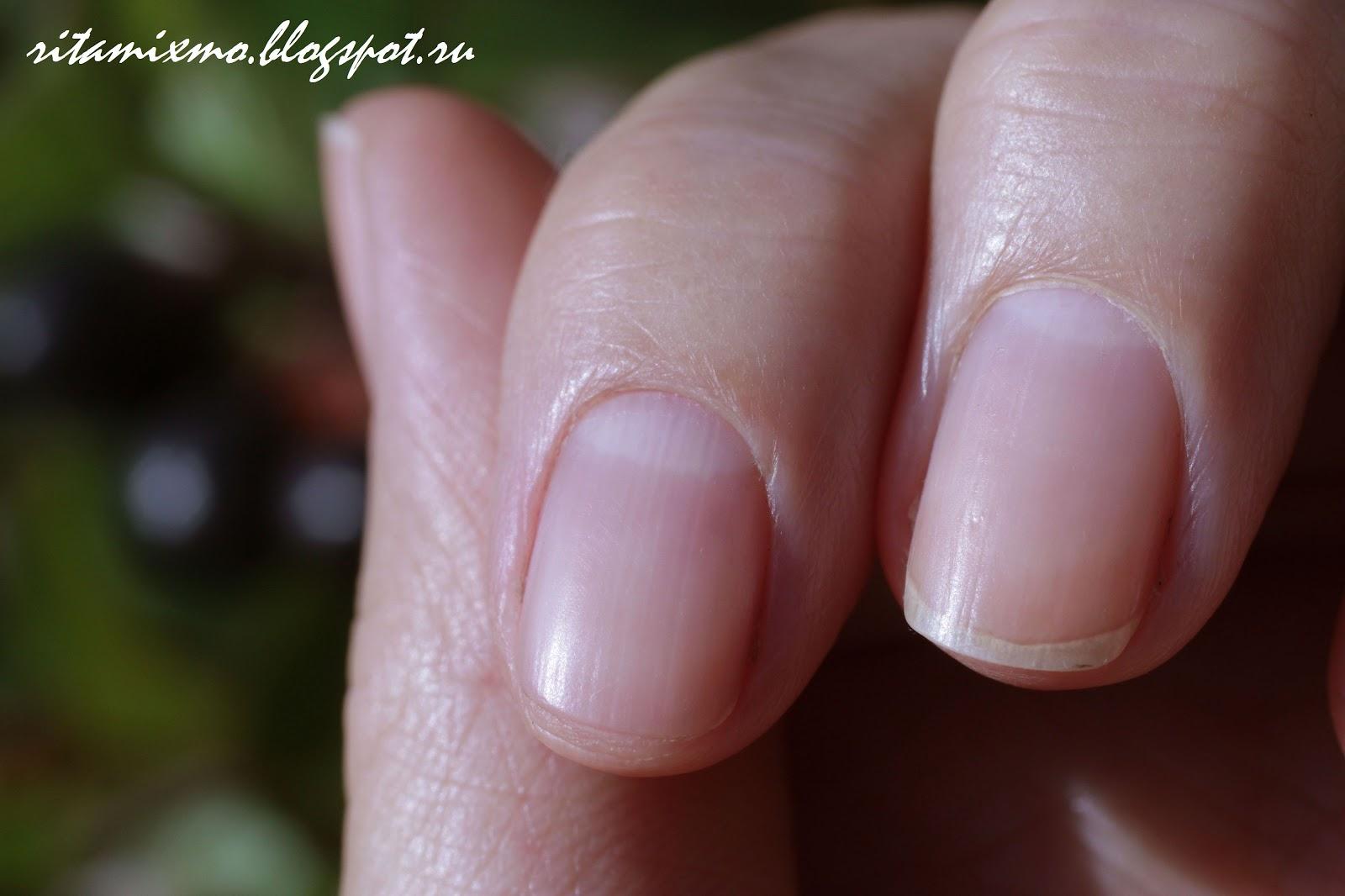 опухоль на пальце руки возле ногтя фото