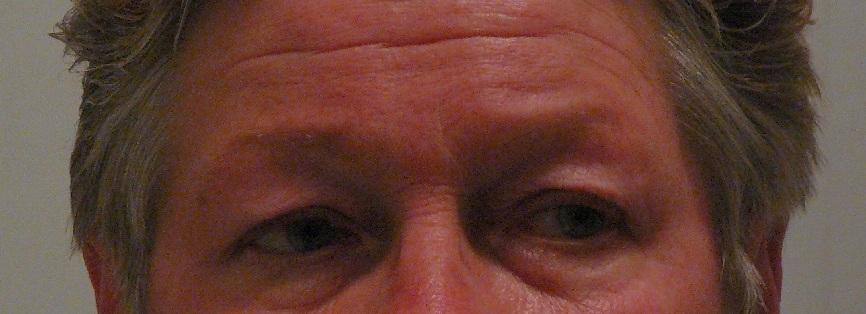 ooglidcorrectie voor na