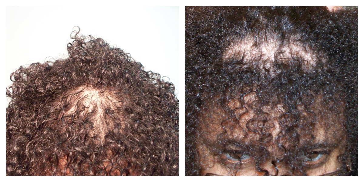 Regrow Hair On Crown Naturally