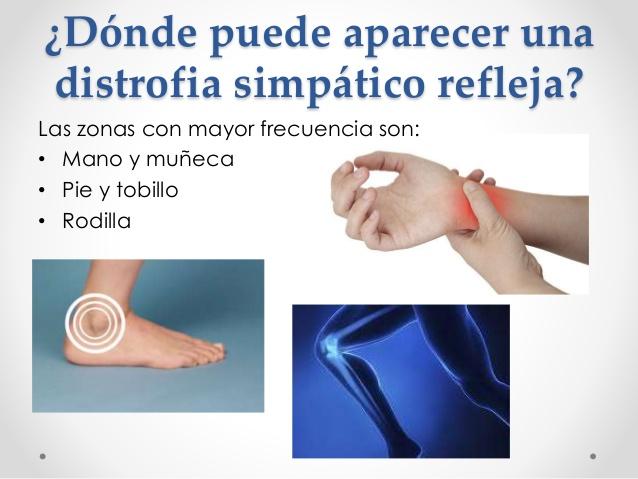 Distrofia simpática refleja / síndrome de dolor regional complejo